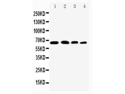Anti-NF-kB p65/RELA Antibody