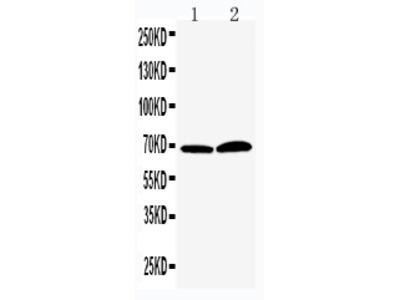 Anti-PADI4/PAD4 Antibody