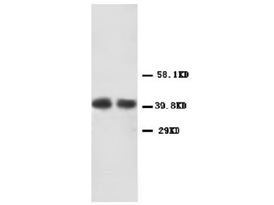 Anti-CXCR2/Il 8Rb Antibody