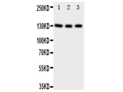 Anti-TrkC/NTRK3 Antibody