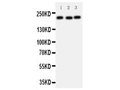 Anti-53BP1/TP53BP1 Antibody