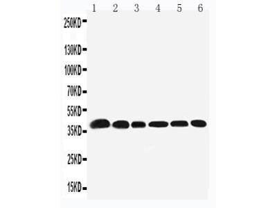 Anti-Nucleophosmin/NPM1 Antibody