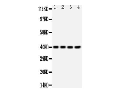 Anti-CXCR1/Il 8 Ra Antibody