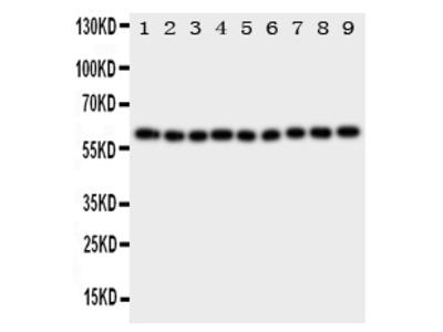 Anti-IL5RA Antibody