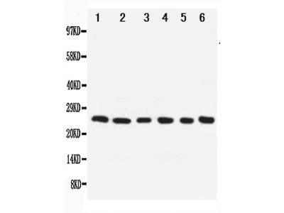 Anti-Apoptosis repressor with CARD/NOL3 Antibody