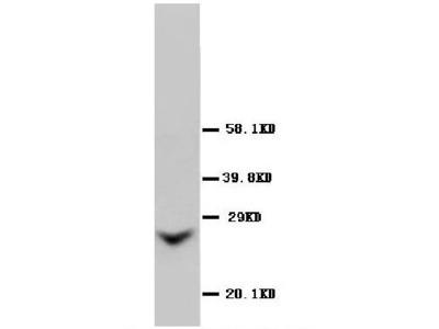 Anti-GJB2 Antibody