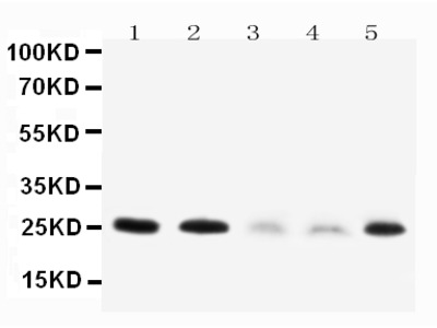 Anti-Pleiotrophin/PTN Antibody