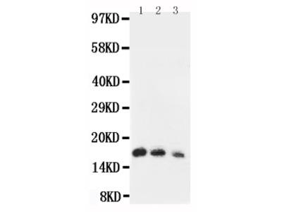 Anti-IL7 Antibody