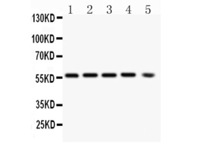 Anti-PKB Alpha Antibody (Monoclonal, PKB-175)