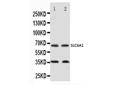 Anti-GABA Transporter 1/GAT 1/SLC6A1 Antibody