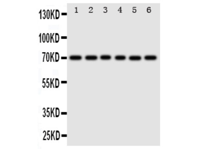 Anti-splicing factor 1/SF1 Antibody