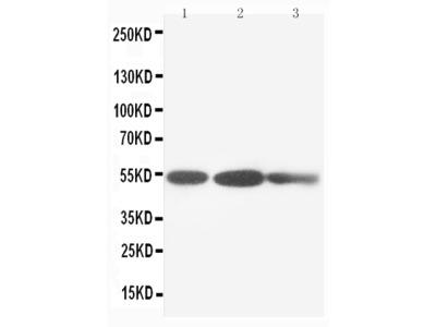 Anti-Cytokeratin 8/KRT8 Antibody