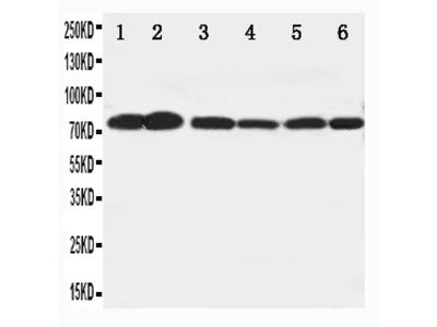 Anti-B Raf/BRAF Antibody
