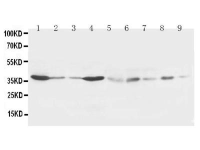 Anti-Hex/HHEX Antibody