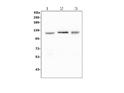 Anti-FAK/PTK2 Antibody