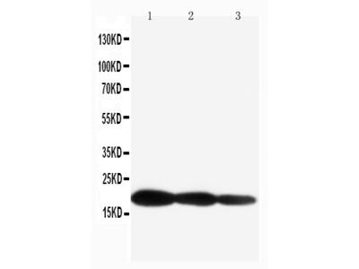 Anti-IL1 beta/IL1B Antibody