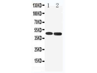 Anti-5HT1A Receptor/HTR1A Antibody