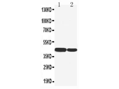 Anti-Cytokeratin 19/KRT19 Antibody