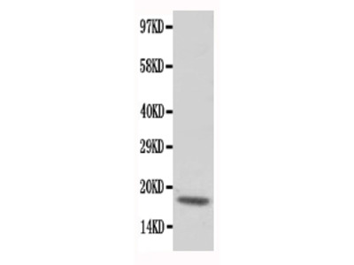 Anti-cardiac Troponin C/TNNC1 Antibody
