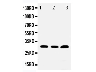 Anti-Tollip Antibody