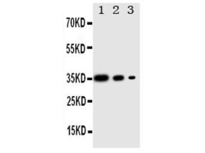 Anti-PERK/EIF2AK3 Antibody