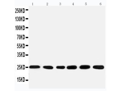 Anti-SNRPN Antibody