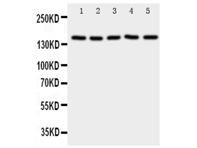 Anti-RFC1 Antibody