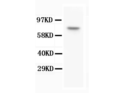 Anti-BAP1 Antibody (Monoclonal, 3C11)