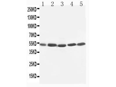 Anti-TIM 1/HAVCR1 Antibody