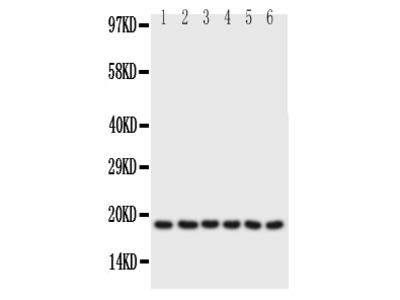 Anti-Phospholamban/PLN Antibody