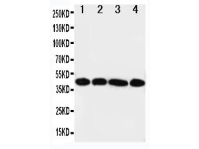Anti-IL3RA Antibody