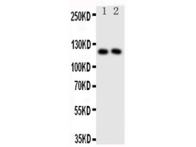 Anti-Neuropilin 1/NRP1 Antibody