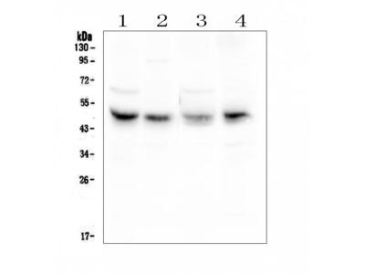 Anti-Coxsackie Adenovirus Receptor Antibody