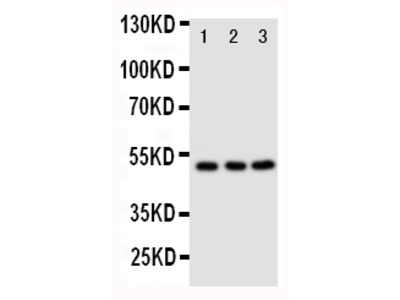 Anti-CXCR4 Antibody