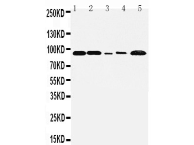 Anti-FGFR1 Antibody