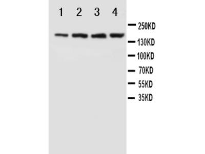 Anti-NMDAR2B/GRIN2B Antibody