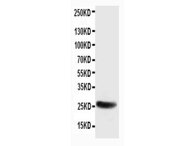 Anti-SNAP25 Antibody