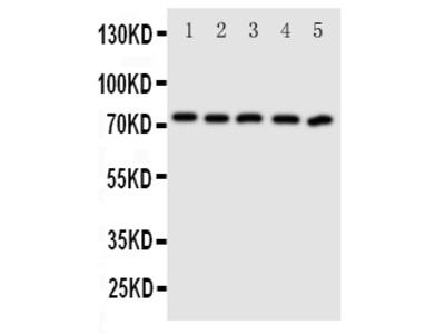 Anti-ABCG5 Antibody