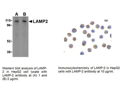 LAMP-2 Antibody (CT)
