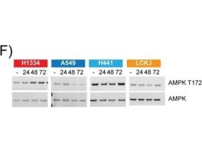 Mouse Monoclonal AMPK alpha 1 Antibody