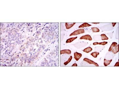 Mouse Monoclonal ABCG2 / CD338 Antibody