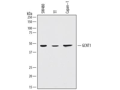 Human Glucosaminyl (N-acetyl) Transferase 1 / GCNT1 Antibody