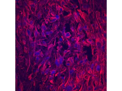 Matrilin-1 Antibody