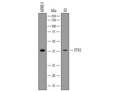 ETV2 /ER71 Antibody