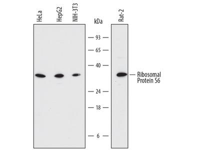 Ribosomal Protein S6 / RPS6 Antibody