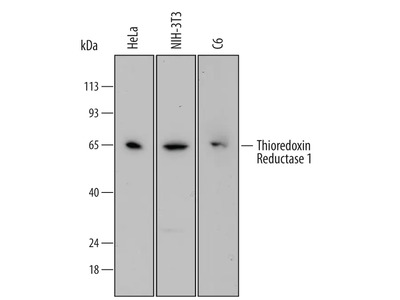 Thioredoxin Reductase 1 /TRXR1 Antibody