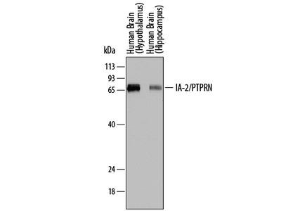 IA-2 / PTPRN Antibody