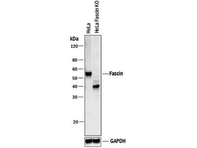 Fascin Antibody