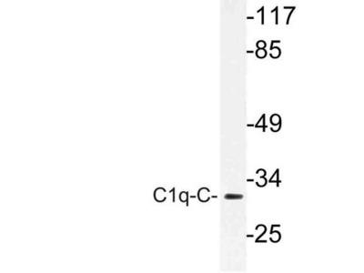 C1QG / Complement C1QC Antibody