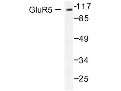 GRIK1 / GLUR5 Polyclonal Antibody